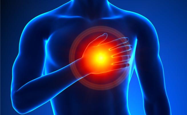 10 maneiras de evitar um ataque do coração