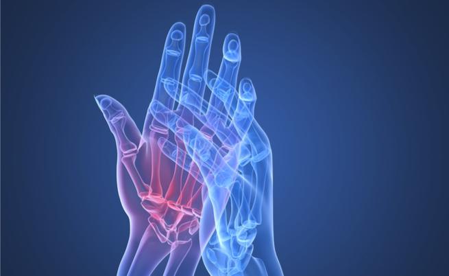 Artrite reumatóide: o que você não sabe sobre os tratamentos