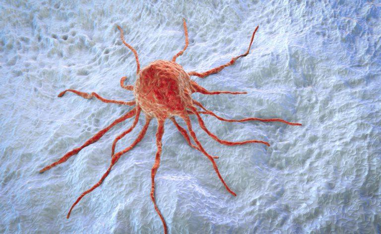 Como prevenir o câncer de cólon