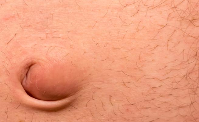 Hérnia Umbilical quando a cirurgia é necessária